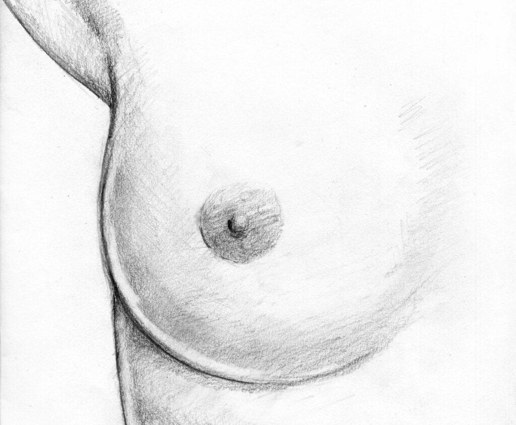 riduzione seno